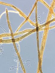 Micrograph of unrefined fibres