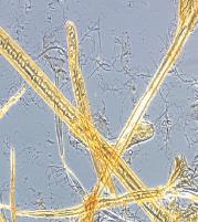 Micrograph of LC refined fibres